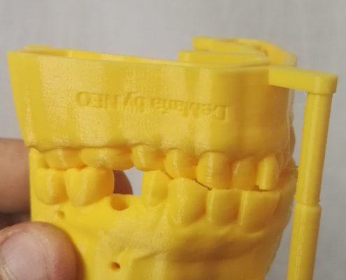 Kentstrapper Verve Modello Dentale