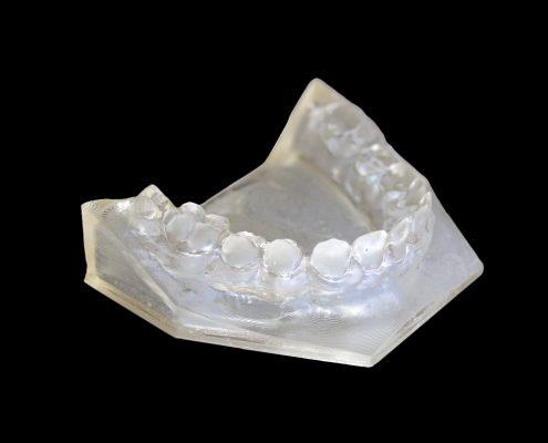 Dettaglio dentiera resina clear2