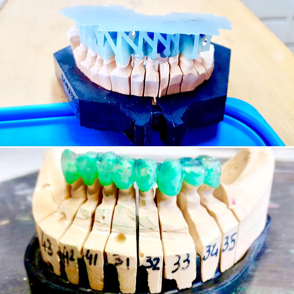 stampanti-3d-resina-ortodonzia-gioielleria